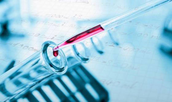 Un test delle urine per diagnosticare il papilloma virus