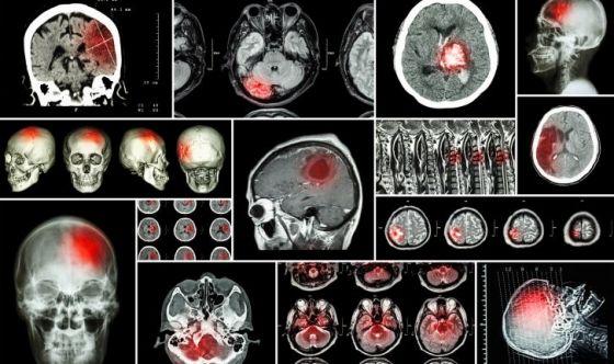 Tumori cerebrali e tecniche radio chirurgiche