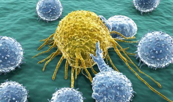 Nanofuturo d'oro nella cura dei tumori
