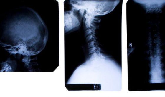 Tumori testa-collo, troppe le diagnosi tardive