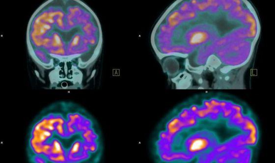 Tumori cerebrali ed epilessia: lo studio italiano
