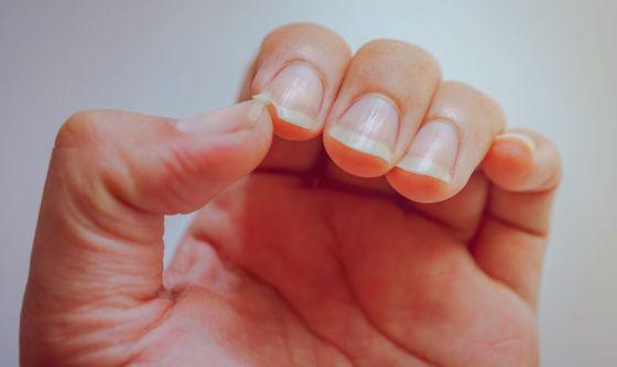 Le unghie rivelano indizi sulla salute generale