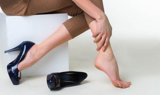 Vene varicose: come prevenirle
