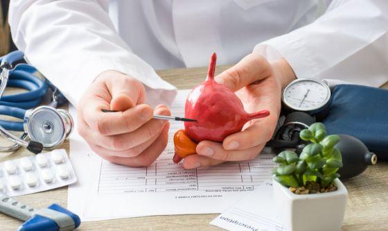Tumore della vescica: una neoplasia diffusa tra i fumatori