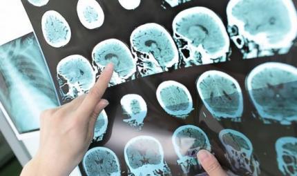 L'Alzheimer si anticiperà con un esame del sangue