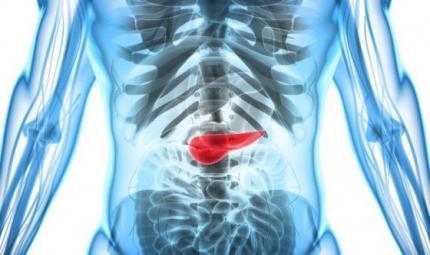 Tumore pancreas più cattivo se contiene batteri della bocca