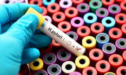 Helicobacter pylori, un fastidioso batterio