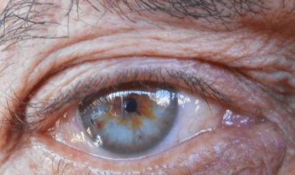 Scoperti 50 nuovi geni che determinano il colore degli occhi
