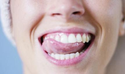 Erosione dentale, un problema che peggiora in estate