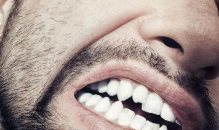 Attenzione alle abitudini che rovinano i denti