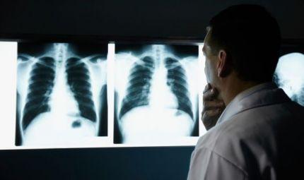 Erdosteina farmaco orfano per la cura della bronchiectasia