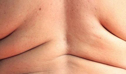Orlistat: un farmaco per perdere peso