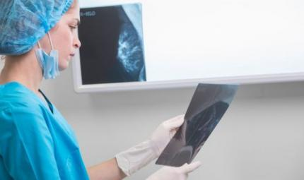 Il gene Jolie non aumenta la mortalità per cancro al seno