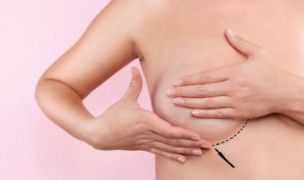Ricostruzione mammaria, la rivoluzione del grasso