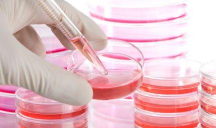 Malattie rare: oltre il 50% è di natura neurologica