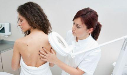 Melanoma, la prevenzione è possibile