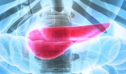 Tumore pancreas: verso una terapia mirata