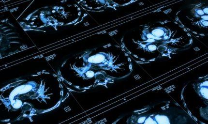 Paralisi cerebrali infantili: novità da uno studio italiano