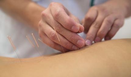 L'efficacia dell'elettroagopuntura nei pazienti ipertesi