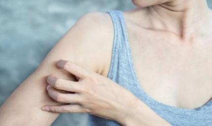 Malattie della pelle: la psoriasi