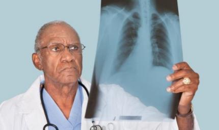 Tumore al polmone, nuovo studio italiano svela meccanismo