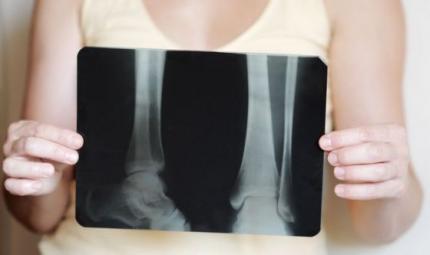 Rischio osteoporosi per le donne in terapia adiuvante