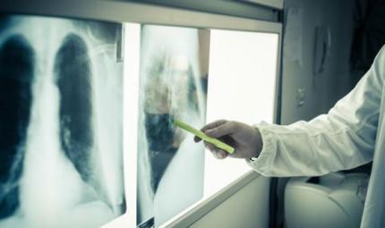 Polmone, test per diagnosi più precise