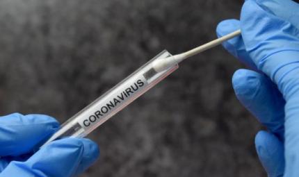 Covid: ok a test antigenico fai da te