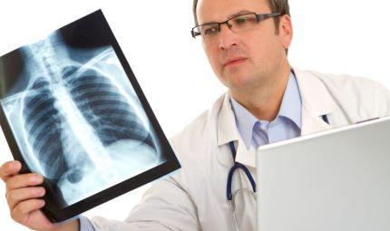 Tumore al polmone: è il mese della prevenzione