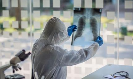 Le caratteristiche della polmonite da Covid