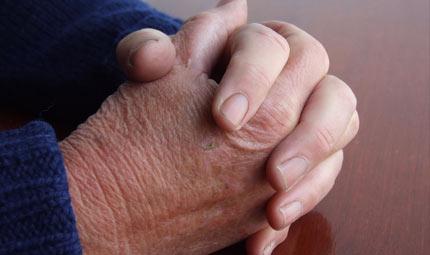 Artrosi: le nuove cure