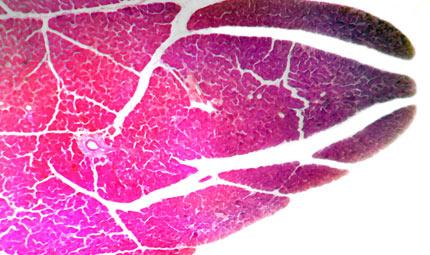 Tumore del pancreas: la ricerca sul big killer