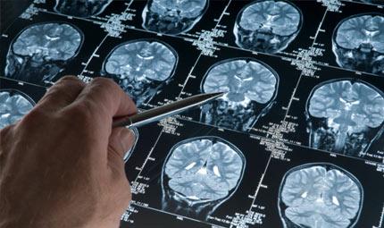 Cervello e sviluppo neurocognitivo