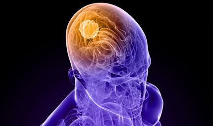 Tumori cerebrali: la nuova radioterapia