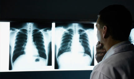 Il tumore al polmone nei non fumatori