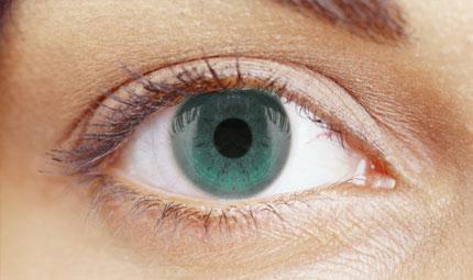 Un nuovo tumore dell'orbita oculare