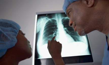 Nuova tecnica chirurgica per il tumore polmonare